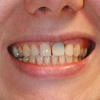 Algseis : väga tume hambajuur plastmasskrooniga.