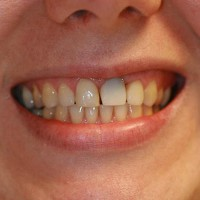Hambad on erineva laiusega.