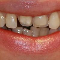 Algseis. Patsienti häirib hammaste asend, kuid ta ei soovi ravi breketitega