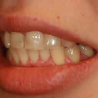 Patsient soovib uuendada 2 hammast