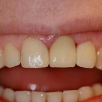 Tumenenud hamba osa eemaldatud võimalikult sügavalt ja paigaldatud tsirkoonkroon. Kõrvalhammaste kuju on parandatud komposiittäidistega.