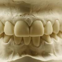 Hambatehniku poolt valmistatud tulevaste hammaste kuju modelleering.