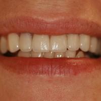 Laminaadid 9 hammast ja 1 kroon