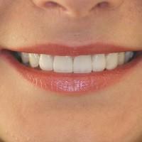 Laminaadid 6 hammast valmis