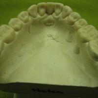 Alumiste hammaste vahast modelleeritud mudel.
