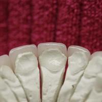 Mudelil on näha vajaliku preparatsiooni(hambakoe eemaldamise) maht soovitud kujuga laminaatide äramahutamiseks oma hammaste peale.