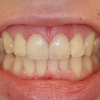 Laminaadid 2 hammast, lisatud on transparaentne serv