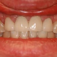 Laminaadid 3 hammast ja1 kroon
