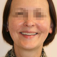 Rahulolev patsient naeratab