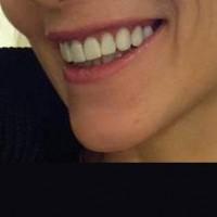 Ajutised hambad materjalist ProTemp. Paari nädala vältel patsient saab uute hammaste kujuga harjuda.Vajadusel saab teha soovitud muudatused tulevaste hammaste välimuses. Ajutised laminaadid asendavad terveid hambaid kuni uute laminaatide valmimiseni.