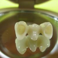 Hambasild : körvalhammastele kinnitatakse kroonid, mille vahel on puuduv hammas.