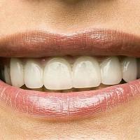 Loomulik valge värv, laminaadid 10 hammast