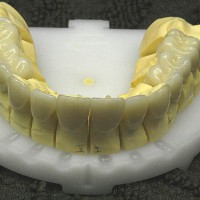 Valmis täiskeraamiline kroon, laminaadid ja täiskeraamilised hambasillad mudelil