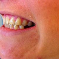 Hambad on kaldenurgaga sissepoole. Selline algsituatsioon võimaldab paigaldada laminaadid ilma oma hammast lihvimata hammaste peale.