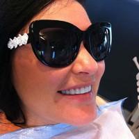 """""""Opalis"""" materjalist üliõhukesed laminaadid on paigaldatud 10-le hambale ilma hambaid lihvimata. Hamba värv """"bleach"""" saavutatud väga hele ja särav tulemus"""